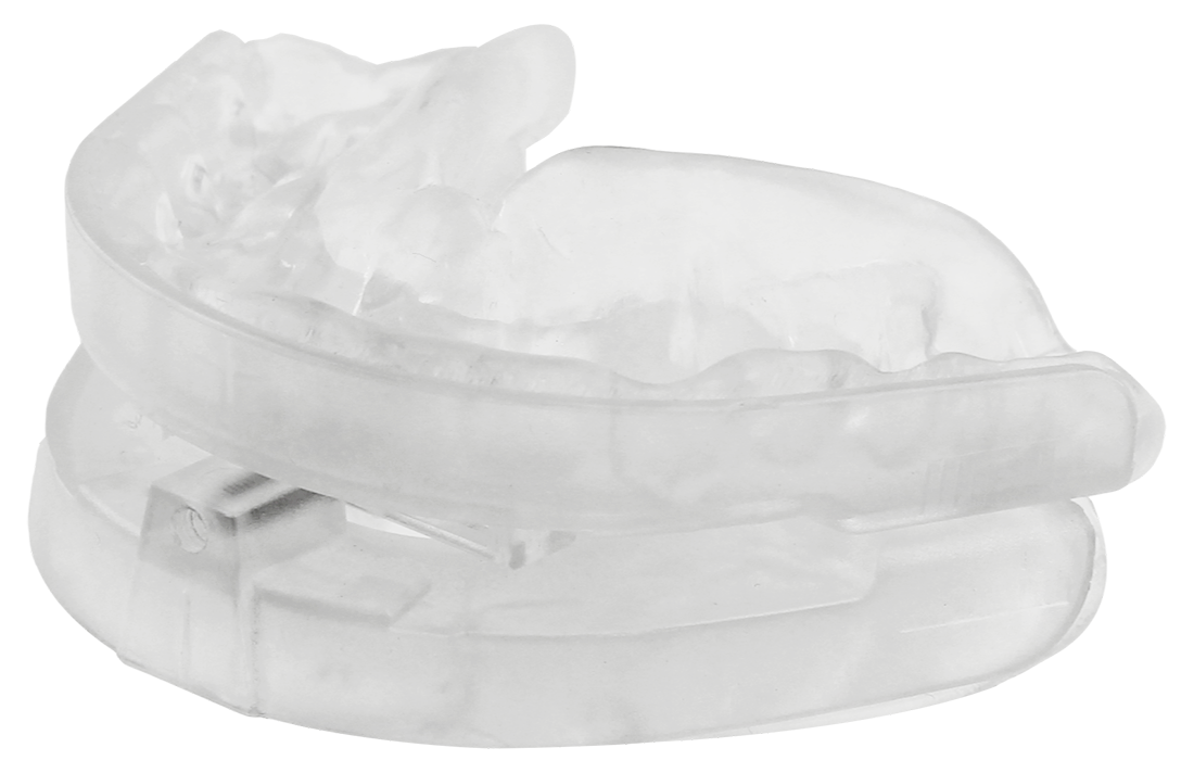 Fitted SomnoGuard AP 2 prefabricated oral appliance