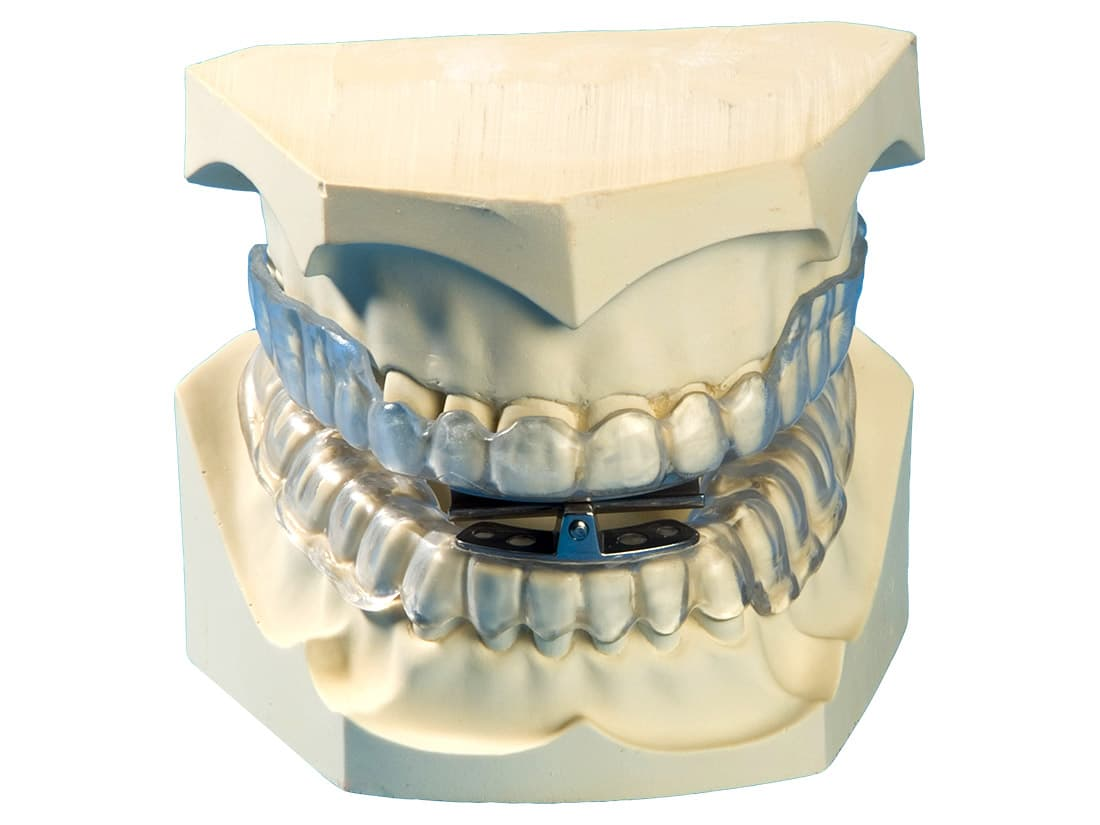 SomnoGuard® AP Pro is a dental appliance for snoring and sleep apnoea