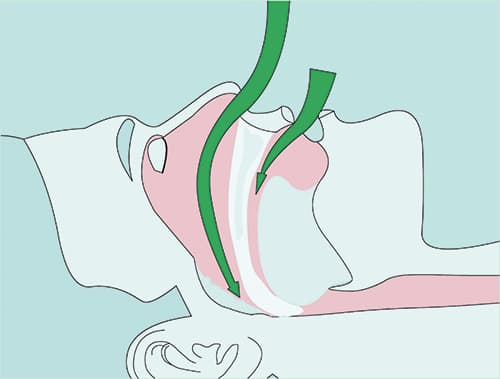 Relaxed jaw position - tongue and soft tissue narrow the upper airways